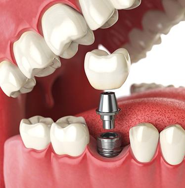 Dentist in Bristol at Gloucester Road | Horfield Dental Care