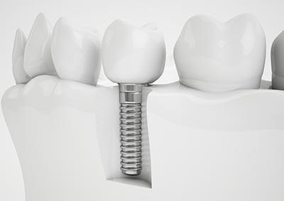 Dental Implants in Bristol